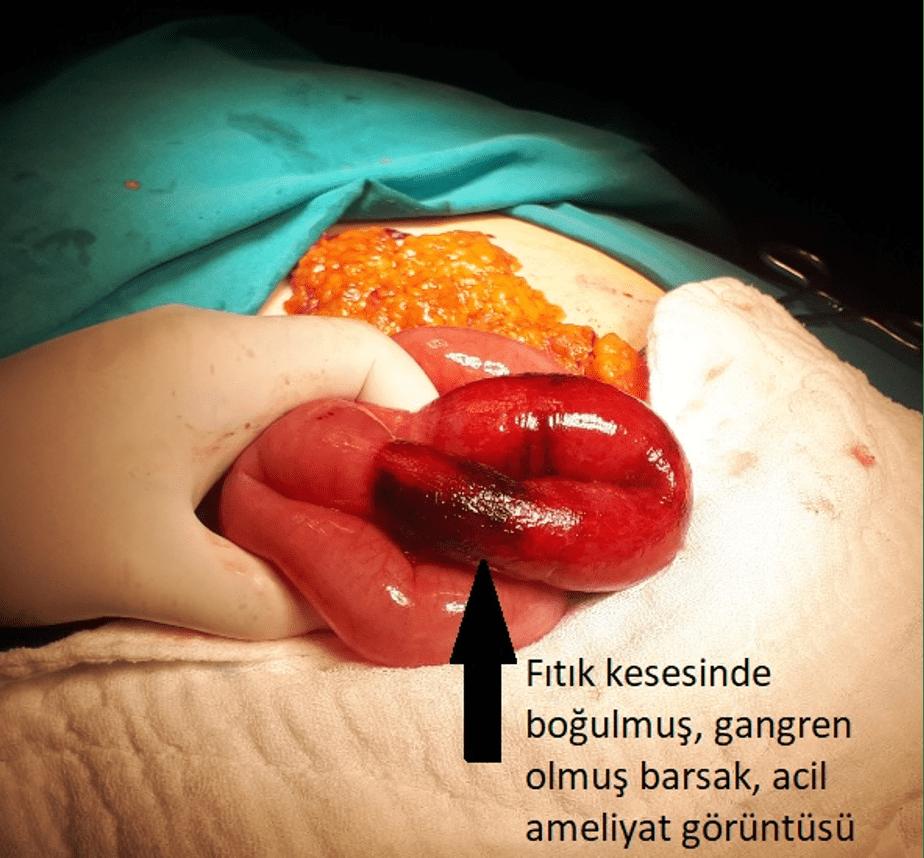 Kasık Fıtığı - Fıtık kesesinde boğulmuş, gangren olmuş bağırsak, acil ameliyat görüntüsü.