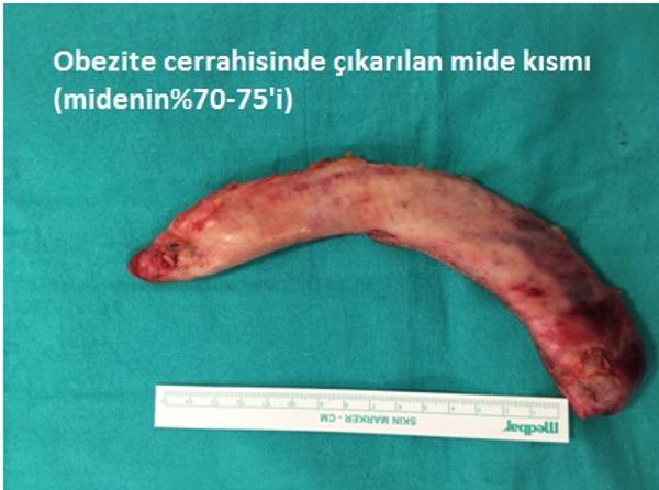 Obezite Cerrahisi Ameliyatı
